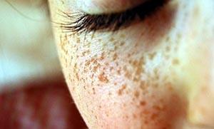 DIY θεραπείες για να απαλλαγείτε από τις φακίδες