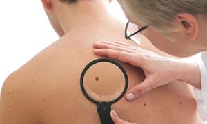 Δωρεάν ιατρικές εξετάσεις για τον καρκίνο του δέρματος στα Χανιά