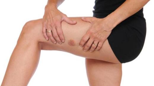 Οι μελανιές στο δέρμα μπορούν να είναι ένδειξη για κάποιο πρόβλημα υγείας;