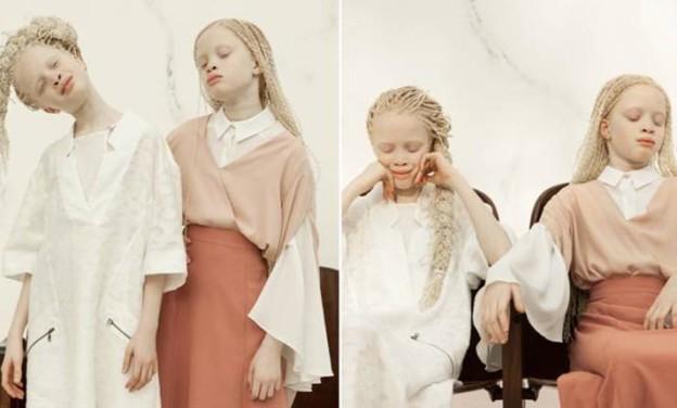Το project ενός Ελβετού φωτογράφου που εξυμνεί τη διαφορετικότητα